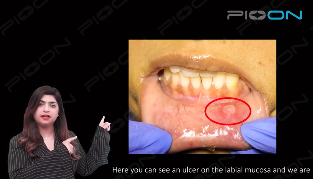 LLLT(Photobiomodulation) for Aphthous ulcers using S1 Pioon Laser